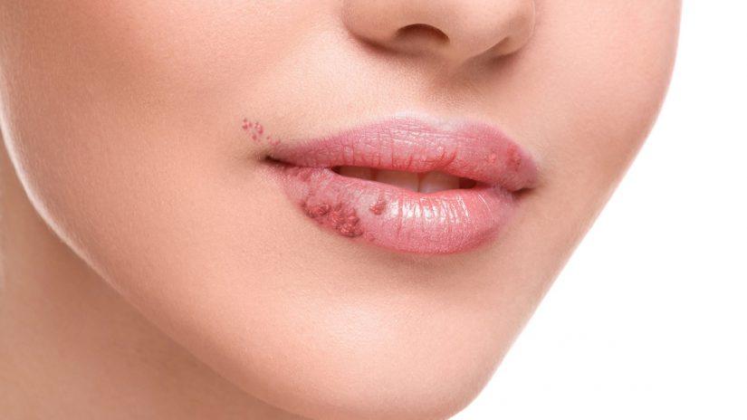 Herpes Simples